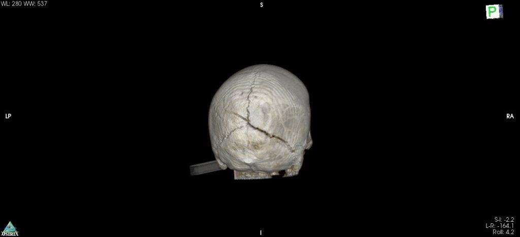 Cracked skull, min